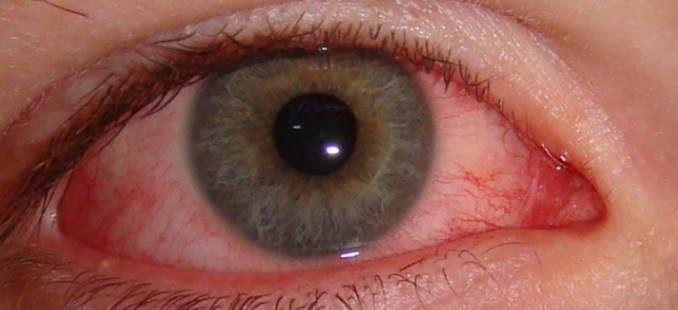 oogontsteking door coronavirus
